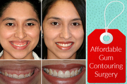 Experienced Cosmetic Dentist in Cardif for Gum Contouring Surgery